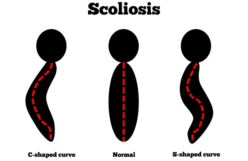 Falls Church, VA scoliosis treatment